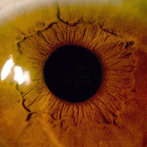 eye scan image